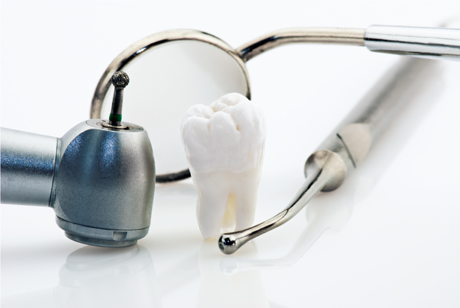 Save Tooth or Dental Implant
